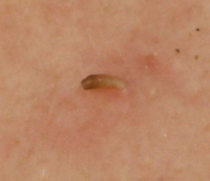 skin holes left by blackhead how to avoid